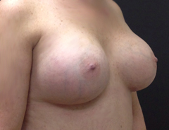 Angle view, breast augmentation after: 36D