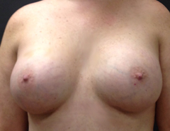 Front View After breast augmentation: 36D