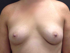Front view, before breast augmentation: 36B