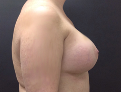 Side View, Breast Augmenation, After: 36D
