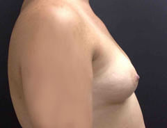 Side View, Breast Augmenation, Before: 36B
