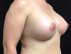 Breast Aug, Angle, 38D