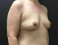 Breast Aug, angle, 38B