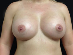 Breast Aug, Front, 38D