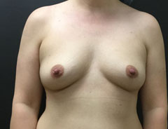 Breast Aug, Front, 38B