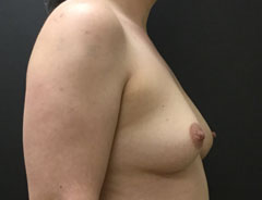 Breast Aug, Side, 38B