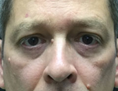 Lower Eyelid, front after surgery