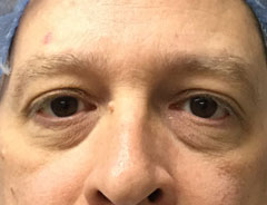 Lower Eyelid, front, before surgery