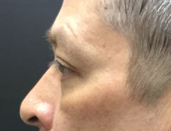 Lower Eyelid, Left Side, After Surgery