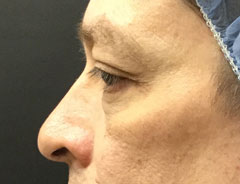 Lower Eyelid, Left Side, before surgery