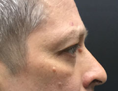 Lower Eyelid, Right Side, After Surgery