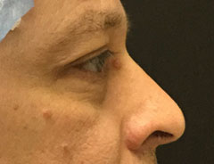Lower Eyelid, Right Side, before surgery