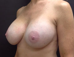 Breast Aug, Angle, 32D