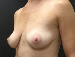Breast Aug, angle, 32B