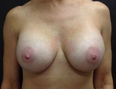 Breast Aug, Front, 32D