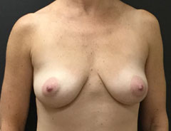 Breast Aug, Front, 32B