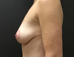 Breast Aug, Side, 32B