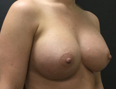 Breast Aug, Angle, 34D