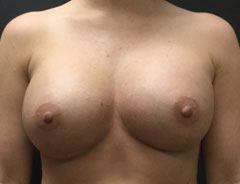 Breast Aug, Front, 34D