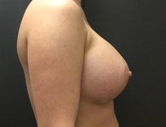 Breast Aug, Side, 34D