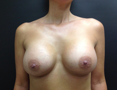 Breast Aug front after