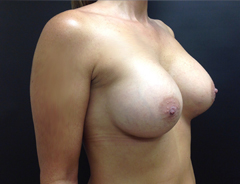 Breast Aug middle after
