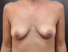 Breast Aug front before