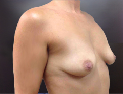 Breast Aug middle before