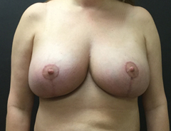 Full Breast Lift front view after surgery