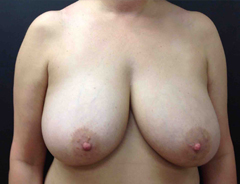 Full Breast Lift front view before surgery