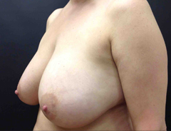 Full Breast Lift middle view before surgery