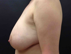 Full Breast Lift side view before surgery