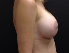 Breast Aug, Side, 34C