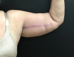 Upper Arm Lift Left Arm After Surgery