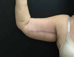 Upper Arm Lift Right Arm After Surgery