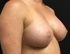 Breast Aug Angle, Post Surgery