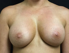 Breast Aug Front Post Surgery
