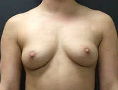 Breast Aug, Front, 34B