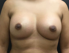 Breast Aug, Front, 34C