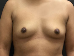 Breast Aug, Front, 34A