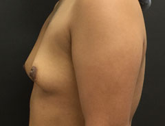 Breast Aug, Side, 34A