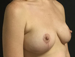 Breast Lift Full, angle, after
