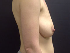 Breast Lift Full, side, before
