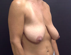 Breast Lift Full, angle, before