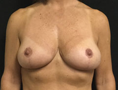 Breast Lift Full, front, after