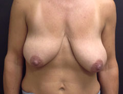 Breast Lift Full, front, before