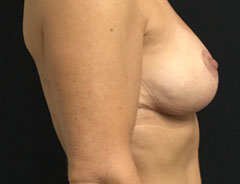 Breast Lift Full, side, after