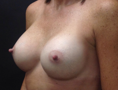 Angle view, breast augmentation after: 34C Full