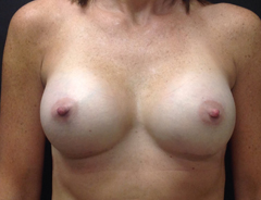 Front view, after breast augmentation: Full 34C