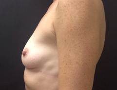 Side View, Breast Augmenation, Before: 34A
